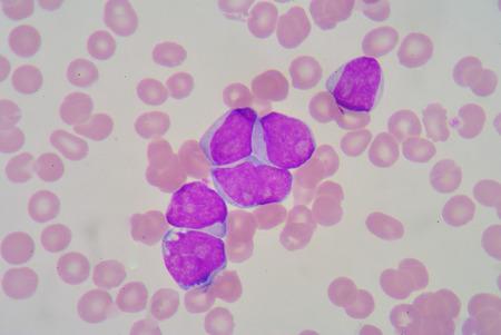 antigen response: blast cell on blood smear