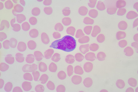 antigen response: atypical lymphocyte Stock Photo