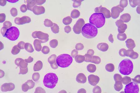 bactericidal: de blastocitos en frotis de sangre Foto de archivo