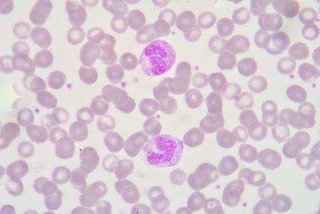 bactericidal: forma de banda de neutr�filos y segmentado Netrophil