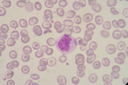 monocyte: Monocyte Stock Photo