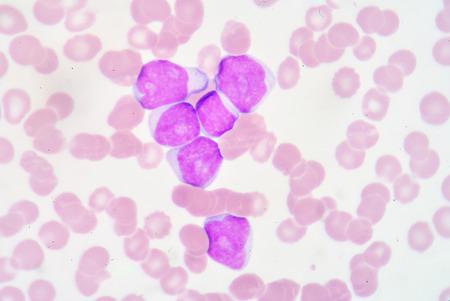 bactericidal: Mieloblasto Foto de archivo