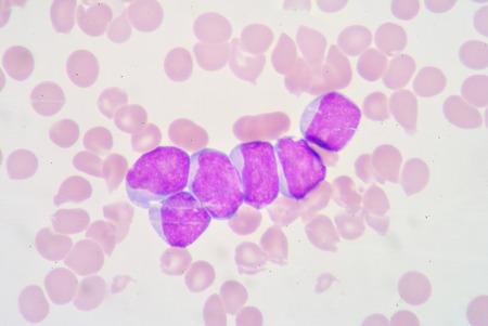 bactericidal: Myeloblast