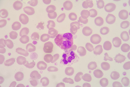 segmented: segmented Netrophil and Eosinophil