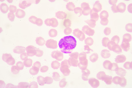 bactericidal: Promyelocye Stock Photo