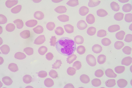 antigen response: single monocyte