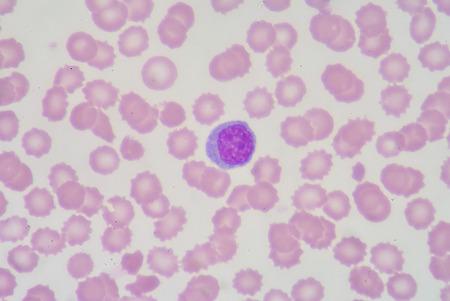 bactericidal: linfocitos
