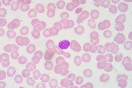 bactericidal: lymphocyte