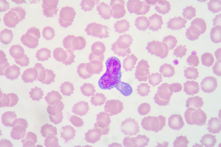 abnormal: Atypical lymphocyte Stock Photo