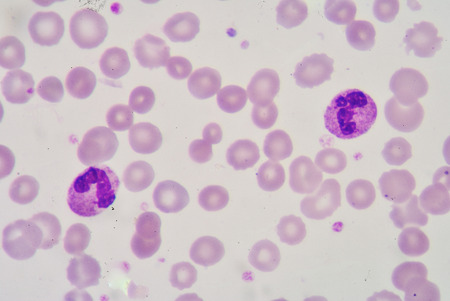 bactericidal: segmented Netrophil