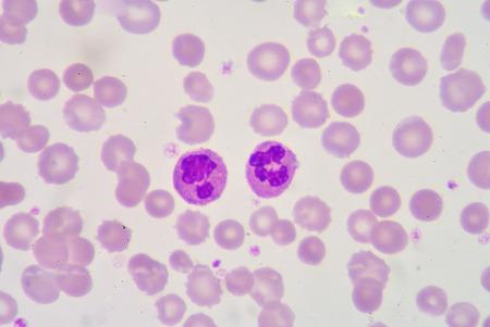 antigen response: segmented Netrophil