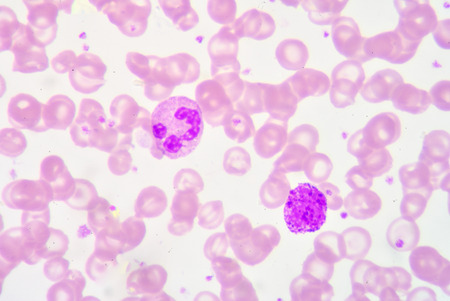 segmented: segmented Netrophil and Basophil