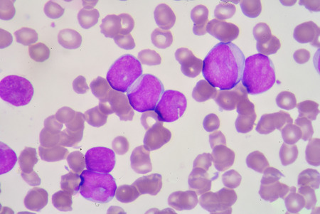 basophil: Myeloblast