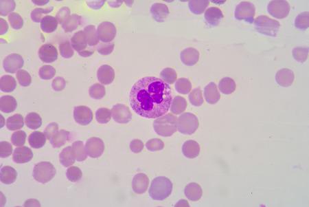 basophil: segmented Netrophil