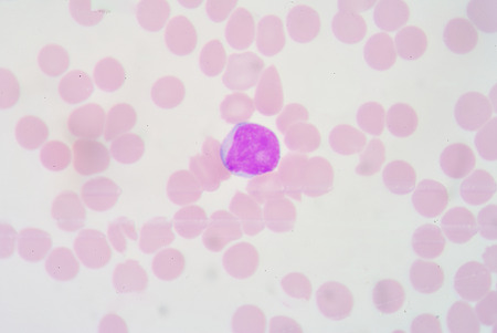 neutrophil: The myeloblast is a unipotent stem cell, which will differentiate into one of the effectors of the granulocyte series. Stock Photo