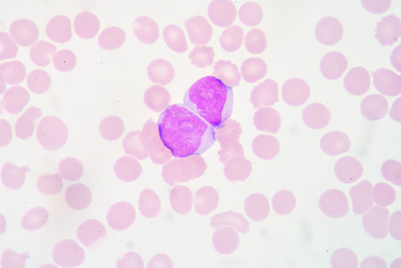segmented: The myeloblast is a unipotent stem cell, which will differentiate into one of the effectors of the granulocyte series. Stock Photo