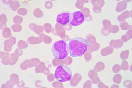 antigen response: The myeloblast is a unipotent stem cell, which will differentiate into one of the effectors of the granulocyte series. Stock Photo