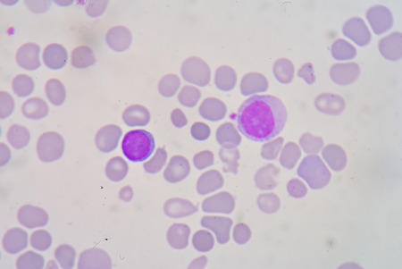 thalassemia: Blood smear Beta thalassemias (β thalassemias) are a group of inherited blood disorders. Stock Photo