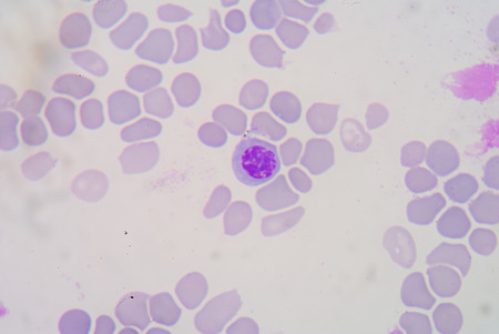 Blood smear Beta thalassemias (β thalassemias) are a group of inherited blood disorders. photo
