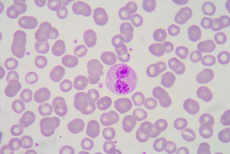 neutrophils: Pelger-Huet anomaly bilobed neutrophils