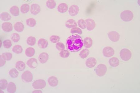 bacterial infection: vacuolizzazione citoplasmatica nella neutrofili come marcatore di infezione batterica. Archivio Fotografico