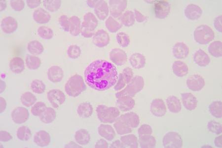 bacterial infection: vacuolizaci�n citopl�smica en el neutr�filos como marcador de infecci�n bacteriana. Foto de archivo