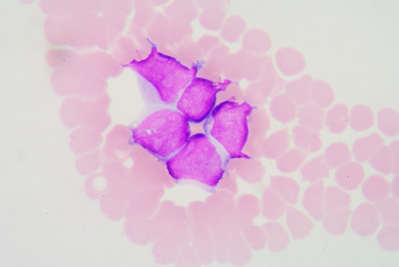 cytology: In cytology, a precursor cell, also called a blast cell or simply blast, is a type of partially differentiated, usually unipotent cell that has lost most or all of the stem cell multipotency.