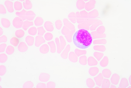 antigen: Reactive lymphocytes are lymphocytes that become large as a result of antigen stimulation.