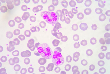 antigen response: Neutrophils are a type of phagocyte and are normally found in the bloodstream.