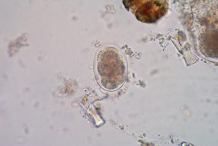 parasitic: Hookworm is a parasitic nematode that lives in the small intestine of its host, which may be a mammal such as a dog, cat, or human. Stock Photo