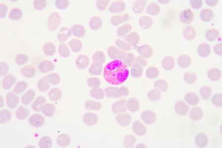 white blood cells: Los gl�bulos blancos de un panorama humano, microfotograf�a como se ve en el microscopio, 1000x zoom. Foto de archivo