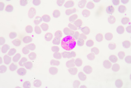 histology: White blood cells of a human, photomicrograph panorama as seen under the microscope, 1000x zoom.