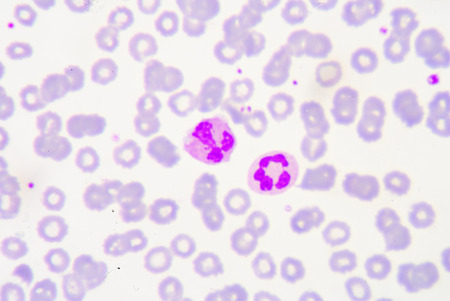pus: White blood cells of a human, photomicrograph panorama as seen under the microscope, 1000x zoom.