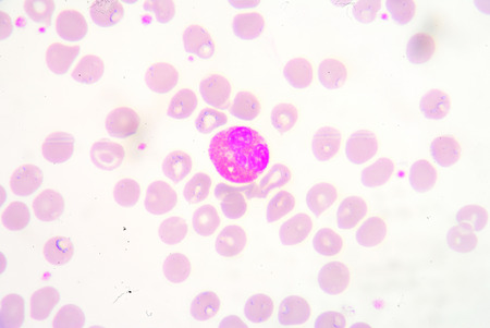globuli bianchi: I globuli bianchi di un panorama umano, photomicrograph come si � visto al microscopio, 1000x zoom.