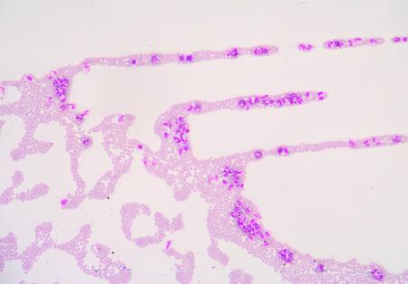 white blood cells: Las c�lulas blancas de la sangre de un panorama humano, microfotograf�a como se ve en el microscopio, zoom 100x.