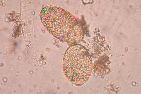Paragonimus westermani is the major species of lung fluke to infects humans, causing paragonimiasis.