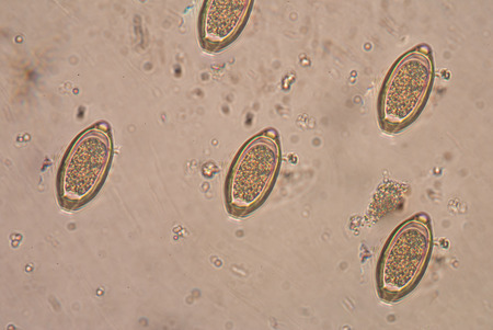 histology: The human whipworm (Trichuris trichiura or Trichocephalus trichiuris) is a round worm (a type of helminth) that causes trichuriasis (a type of helminthiasis which is one of the neglected tropical diseases) when it infects a human large intestine.