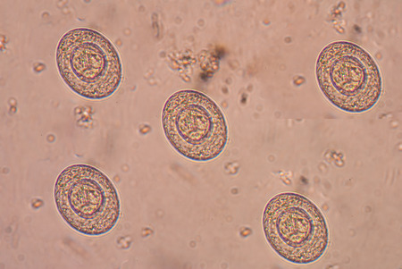 parasites: Taenia is a genus of tapeworm (a type of helminth) that includes some important parasites of livestock.