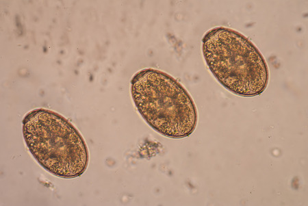 histology: Numerous trematodes cause disease in humans. Stock Photo