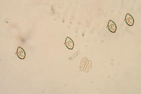 histology: Opisthorchis viverrini, common name Southeast Asian liver fluke, is a trematode parasite.