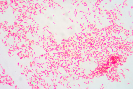 Gram staining ,gram negative bacilli.