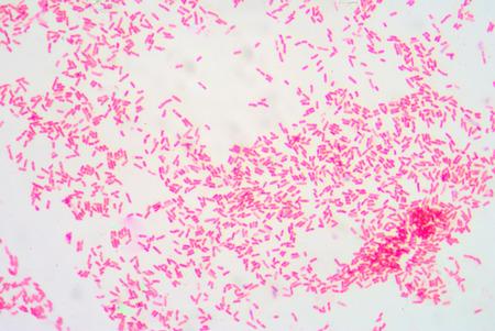 staining: Gram staining ,gram negative bacilli.
