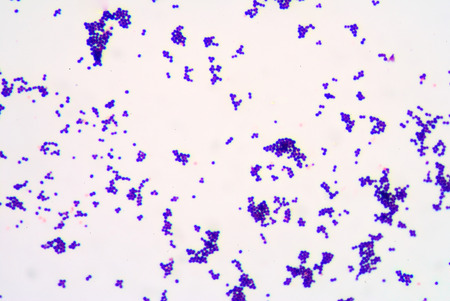 staining: Gram staining,gram positive cocci.