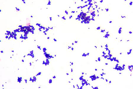 fimbriae: Gram staining,gram positive cocci.