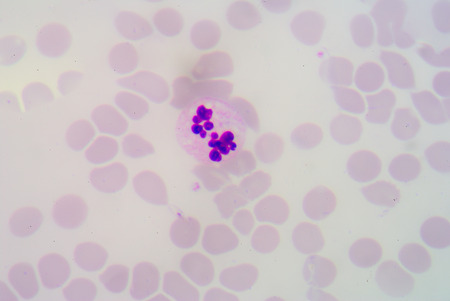 basophil: hypersegmented neutrophils. Stock Photo