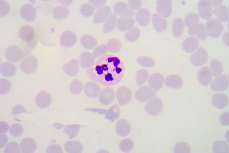 hypersegmented neutrophils. Stock Photo
