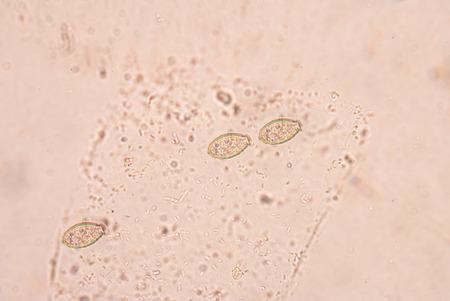 anal: Opisthorchis viverrini, common name Southeast Asian liver fluke, is a trematode parasite.