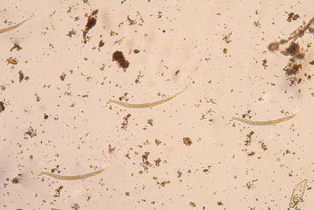 beneficial insect: Strongyloides stercoralis is a human parasitic roundworm causing the disease strongyloidiasis. Stock Photo