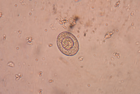 histology: Taenia is a genus of tapeworm (a type of helminth) that includes some important parasites of livestock.