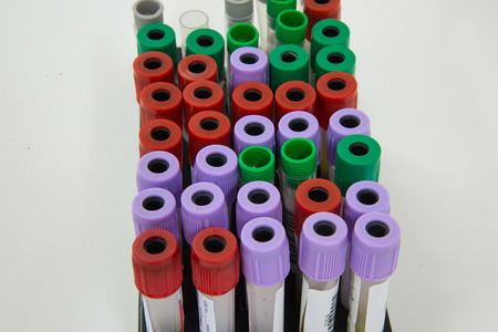 specimen testing: Blood tube specimen for testing in laboratory. Stock Photo